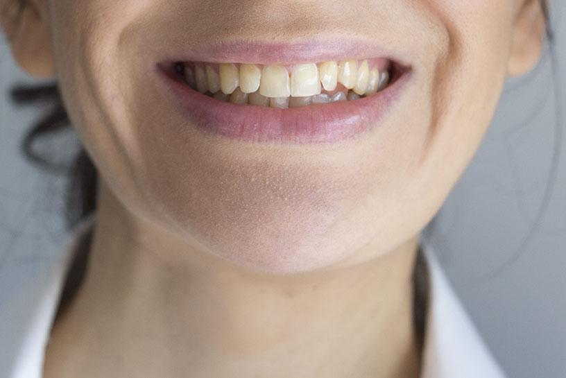 Zuby před bělením.